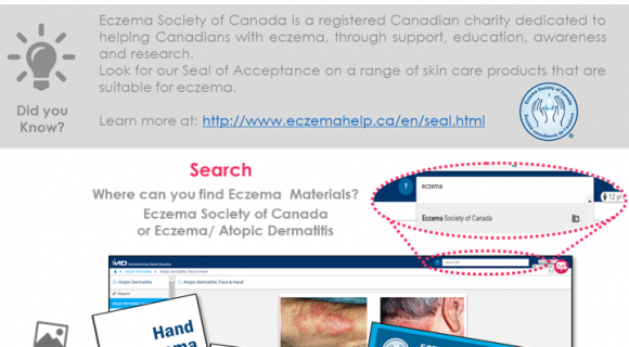 New Content: Check Out What's New in Our Eczema Sections